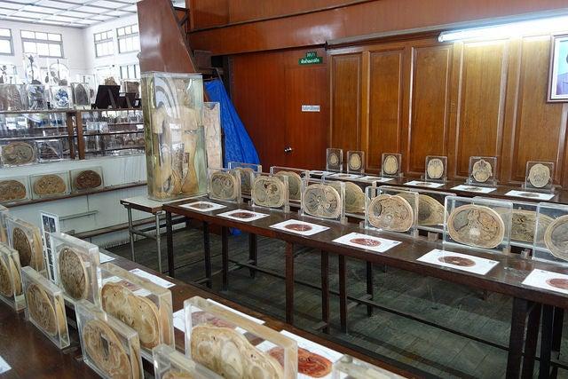 Bangkok-Forensisches-Museum-travel blog